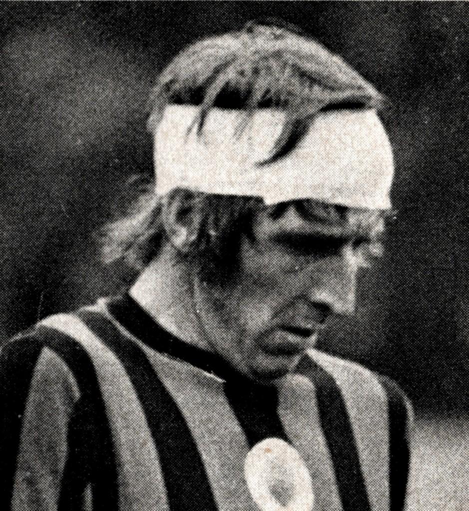 chelsea away 1971 to 72 davies head injury